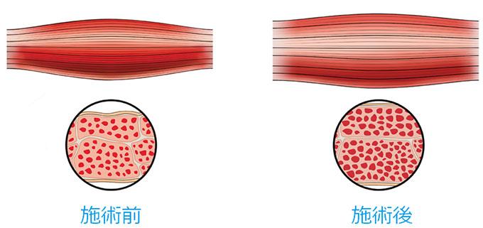 超極大筋収縮による筋肉の成長