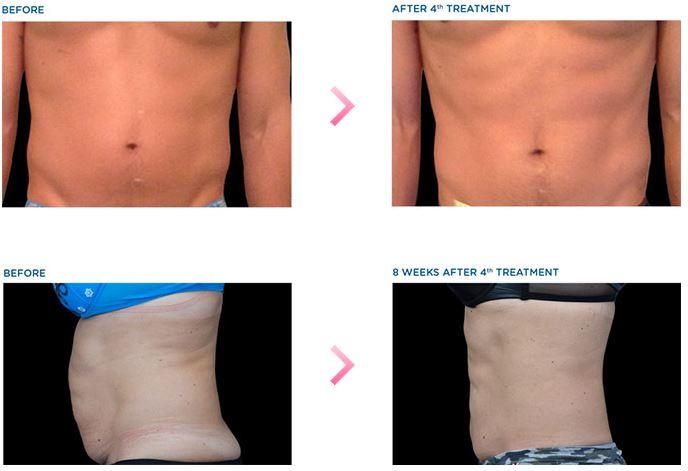 症例写真(腹部)筋肉増大+脂肪減少