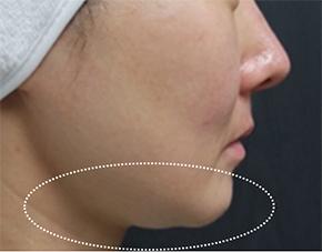 リフテラVの症例写真